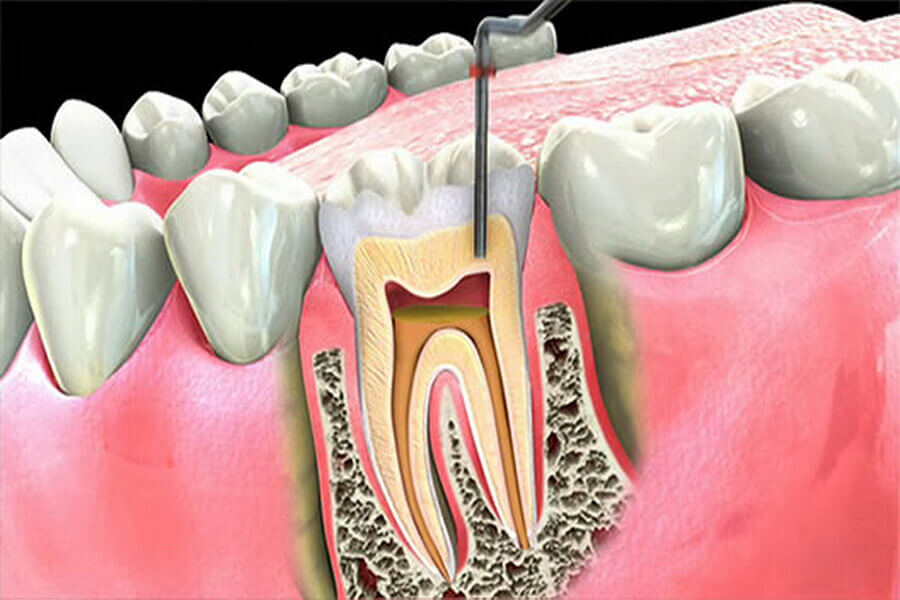 root canal treatment in Lahore