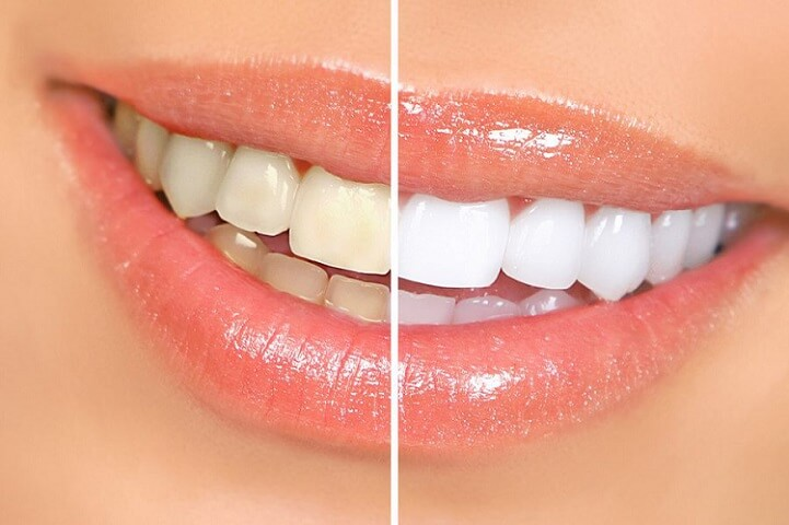 teeth whitening by DH Dental Lahore