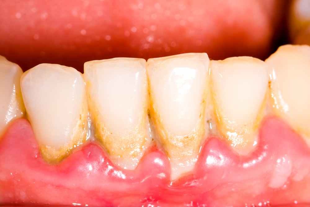 Sensitive Gums Vs. Sensitive Teeth