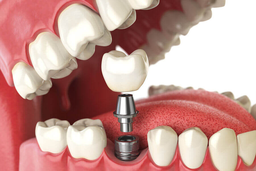 Dental Implants - DH Dental Lahore Pakistan