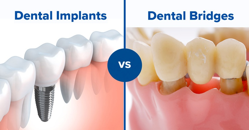 How to Choose between Dental Implants and Dental Bridges