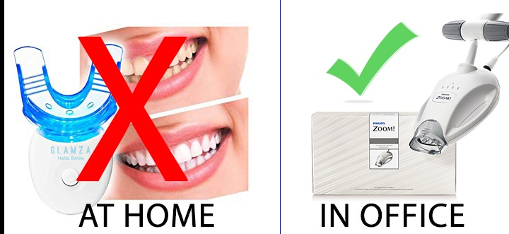 Dangers of at home teeth whitening vs in office